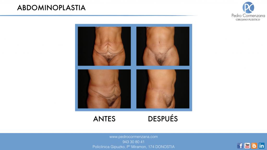 Abdominoplastia1