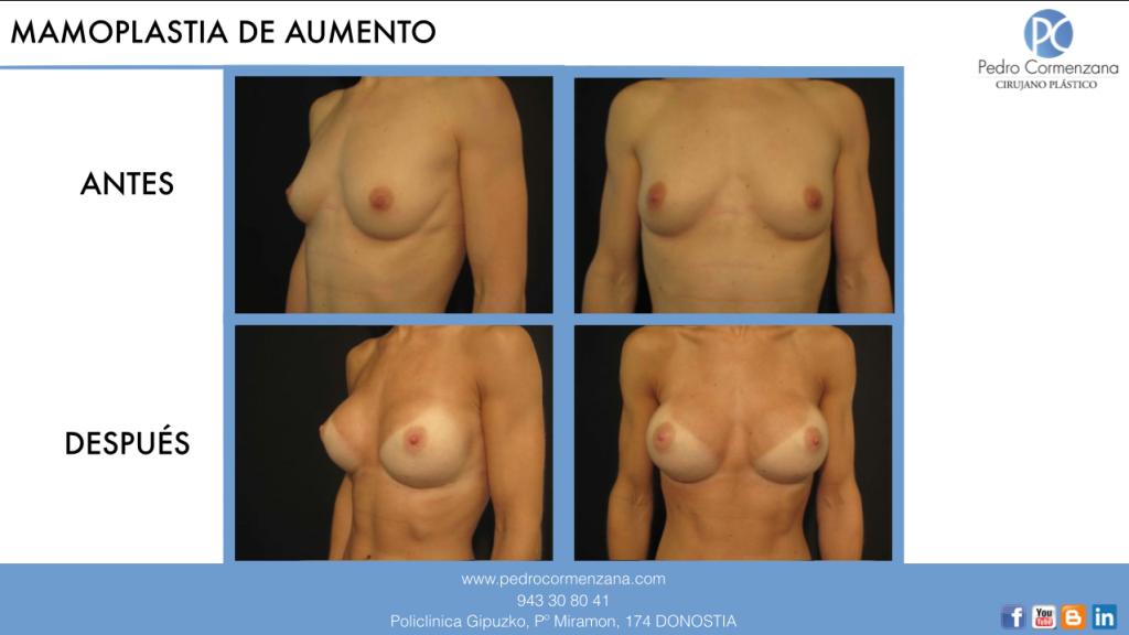 Mamoplastia de aumento en Donostia caso 1