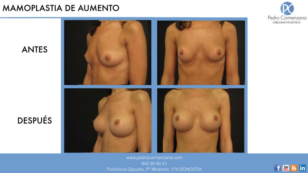 Aumento de senos en donostia caso 2
