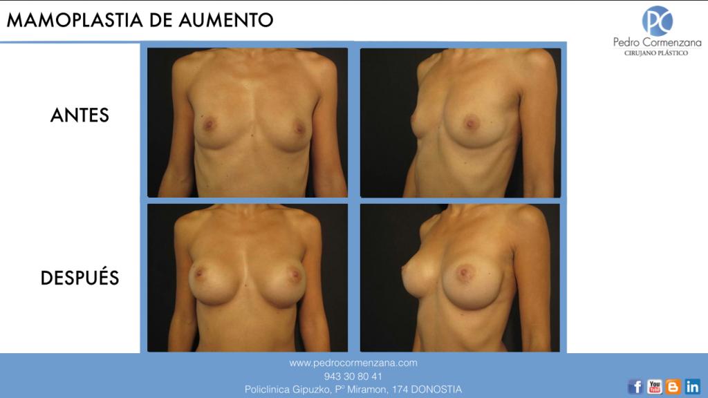 aumento de senos en donostia: mamoplastia de aumento