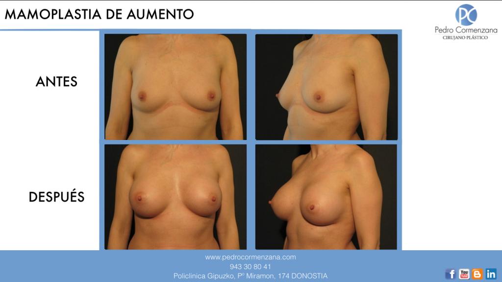 mamoplastia de aumento: aumento de senos en donostia