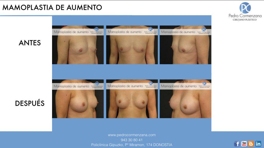mamoplastia_de_aumento_donostia_aumento_de_senos