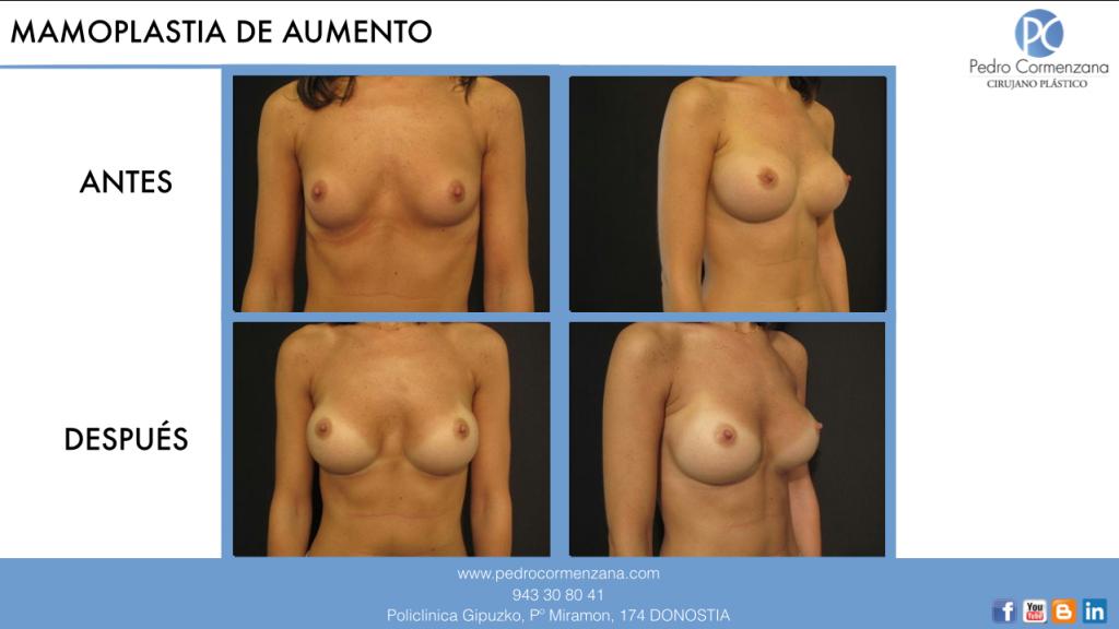 mamoplastia de aumento en donostia: aumento de senos