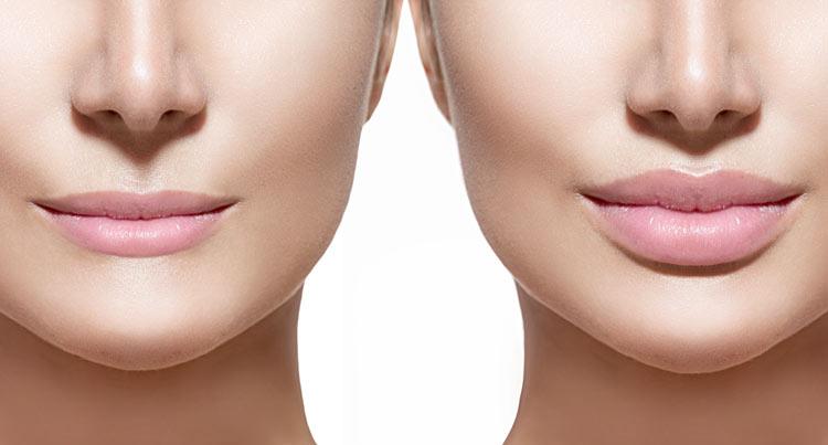 acido hialuronico labios sevilla