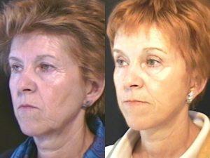 Blefaroplastia Lifting Facial Perfil 1