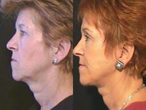 Blefaroplastia Lifting Facial Perfil 2